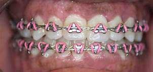 teeth with fastbraces
